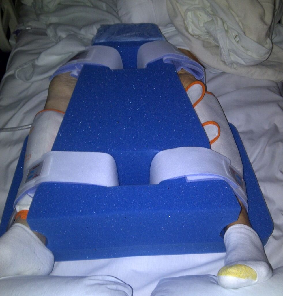Patient's legs from inferior supine position