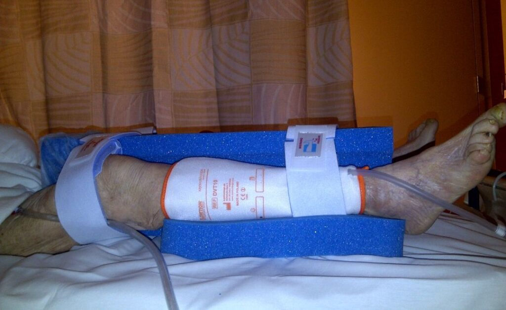 Patient's legs from right side in supine position